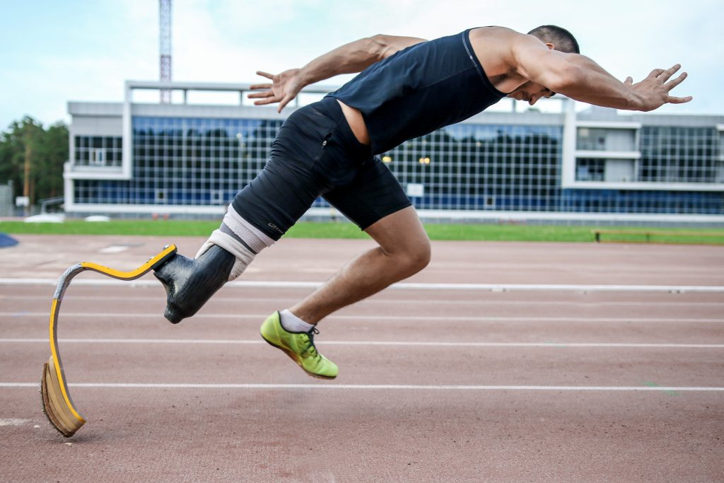 How Do Prosthetic Limbs Work?