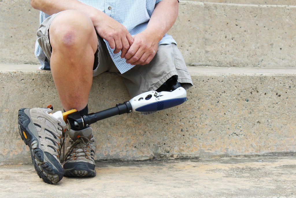 4 Pre and Post Surgical Tips for Prosthetic Limb