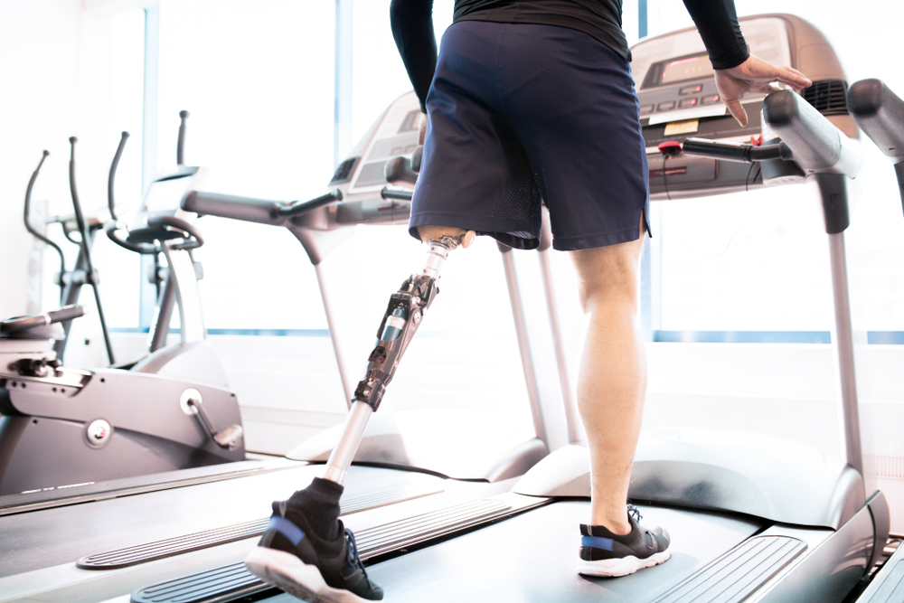 Services Provided by the Best Prosthetic Companies Port St. Lucie